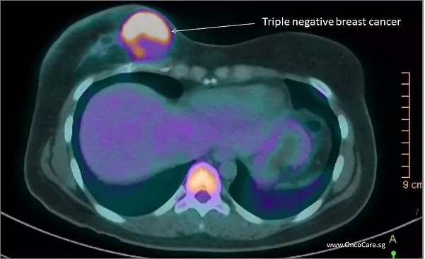 Ten Facts about Triple Negative Breast Cancer (TNBC)