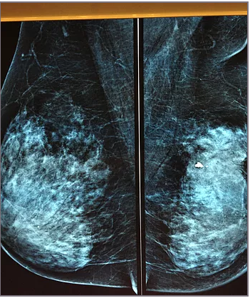 What is HER2 Positive Breast Cancer?